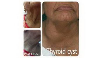 Thyroid-Cyst